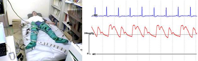 CCPシステムで2:1駆動補助時の血圧波形。CCP補助によりIABP補助効果と同様の良好なカウンターパルセーション補助効果が観察された。(モデルは著者)
