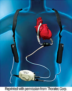 (b) HeartMate II植込型補助人工心臓