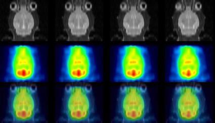 図1 小動物専用半導体PET装置と小動物専用MRIによる画像例