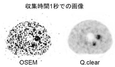 図PET4 MIにて1秒で収集したファントーム画像。 Q. Clearでの画像再構成法は優れている。