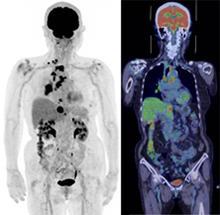 図PET5 みぎ肺がん。 リンパ節転移、肝転移、多発骨転移。