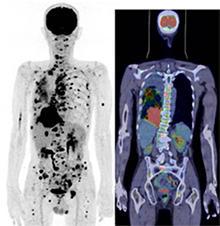 図PET7 みぎ肺がん、肺内転移、 多発リンパ節転移、多発骨転移、腹膜播種。