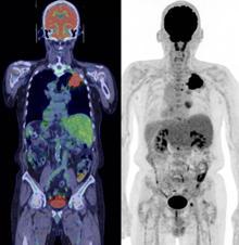 図PET8 みぎ肺がん、縦隔リンパ節、 みぎ前縦隔腫瘍。