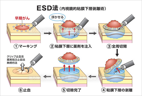 早期食道癌・早期胃癌・早期大腸癌
