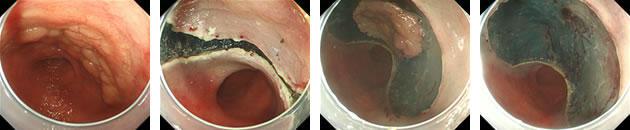 胃ESD症例:90歳代 女性 胃癌 5cmの病変を37分で一括切除