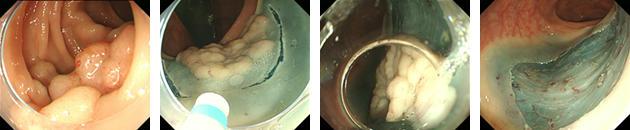 食道ESD症例:70歳代 男性 食道癌 6cmの病変を73分で一括切除