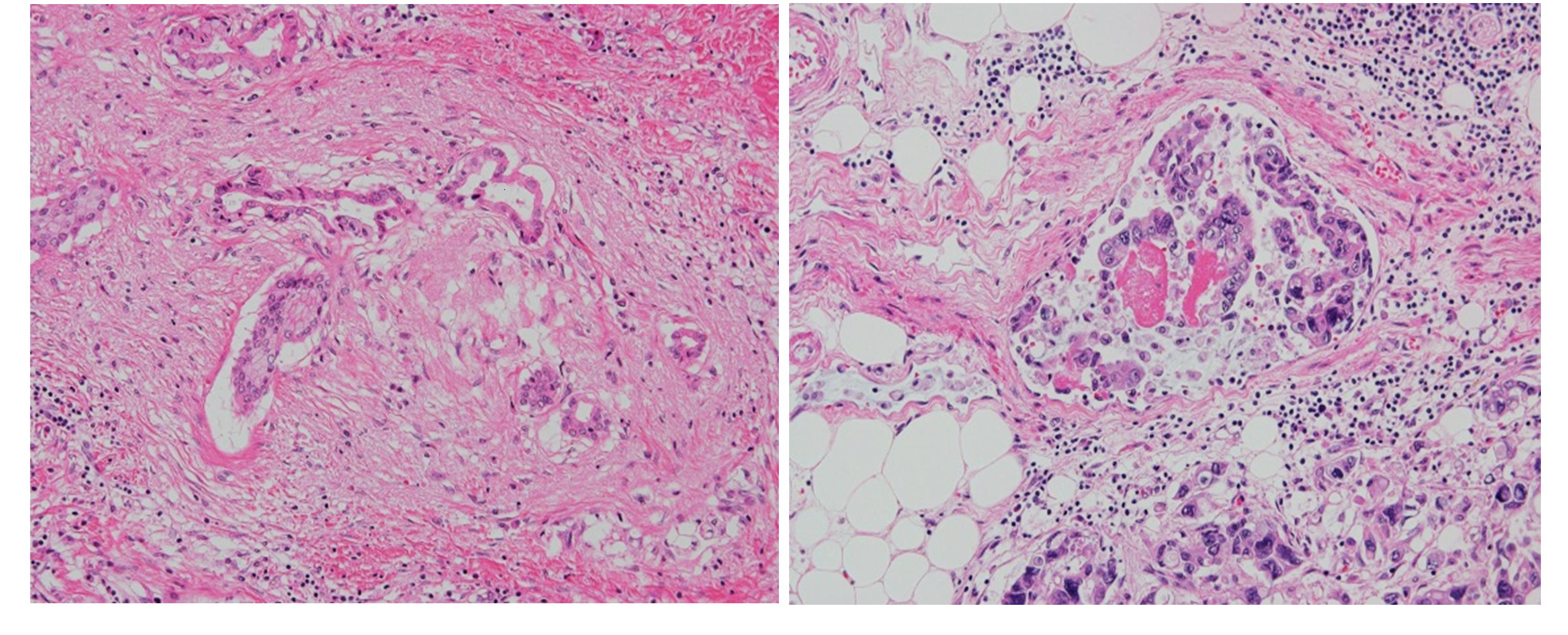 図1、不顕性癌の病理像、Hematoxylin & Eosin染色