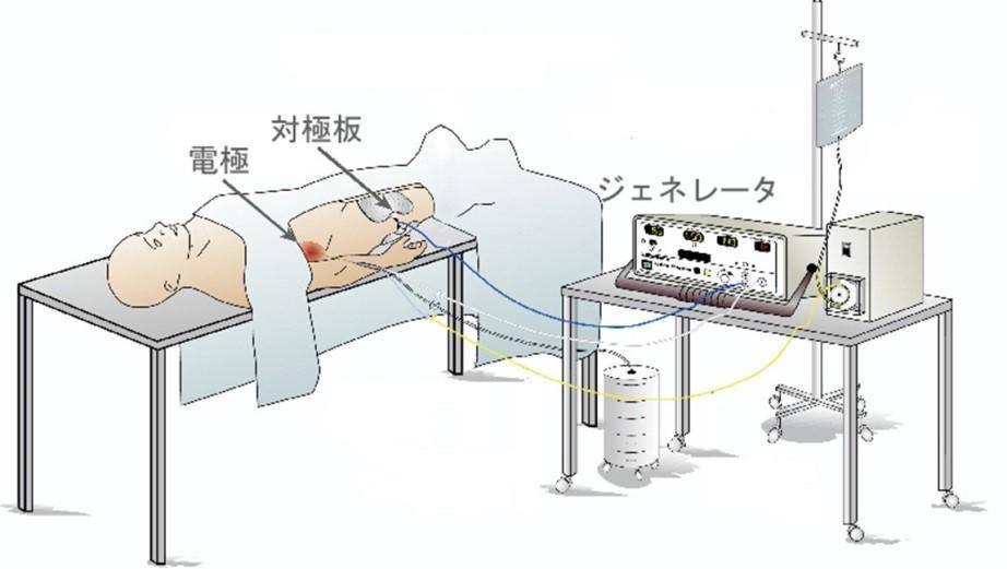 ラジオ波.jpg