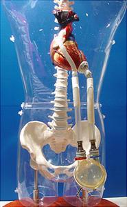 (a) 体外設置型ニプロ補助人工心臓