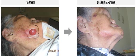 症例1.有棘細胞がん(106歳・女性)