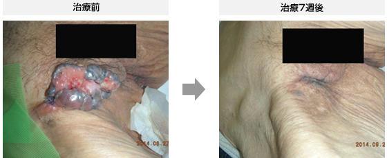 症例2.基底細胞がん(91歳・女性)
