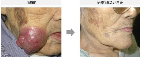 症例4.メルケル細胞がん(98歳・女性)
