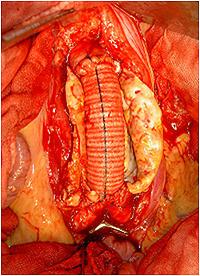 腹部大動脈人工血管置換後
