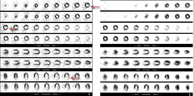 図2. D-SPECTと通常のSPECTの画質の違い ひだり: D-SPECT みぎ: 通常のSPECT . D-SPECTでは側壁の虚血がきれいに描出されている。(←矢印)