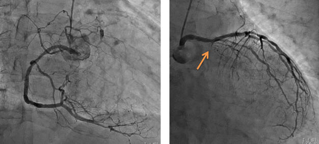 図4 図2-3の症例のCAG 3枝病変で、RCA, LADにも狭窄が認められますが、LCXは根元から完全閉塞でした。