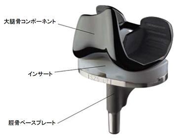 人工膝関節の各部品