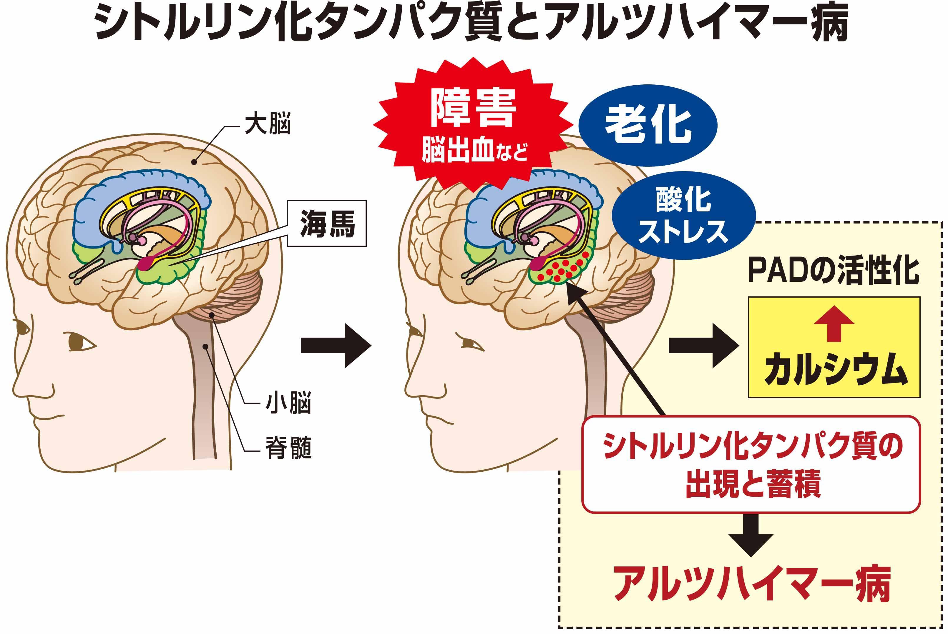シトルリン化タンパク質とアルツハイマー病.jpg