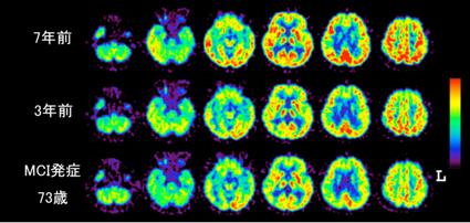 図1. 軽度認知障害(MCI)発症3−7年前の[18F]FDG-PET画像