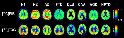 図2. 認知症関連疾患における[11C]PiBと[18F]FDG画像