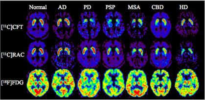 図3. パーキンソン症候群における[11C]CFT、[11C]RACと[18F]FDG画像
