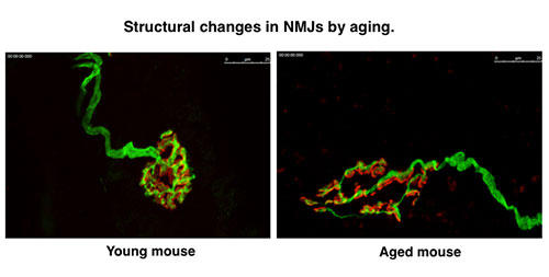 Structural changes in NMJs by aging.