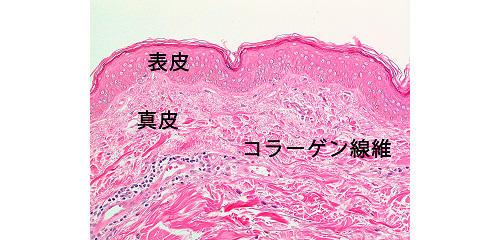 図2:日光に当たらない皮膚(腹部)の顕微鏡写真