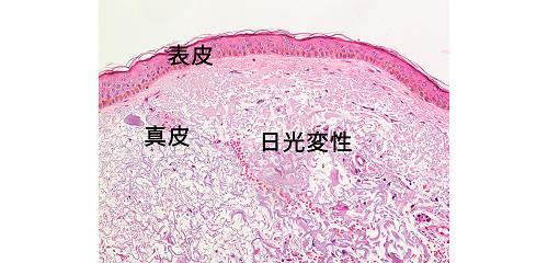 図3:日光に当たる皮膚(顔面)の顕微鏡写真