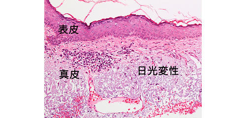 図4:日光角化症の近くの皮膚(顔面)の顕微鏡写真