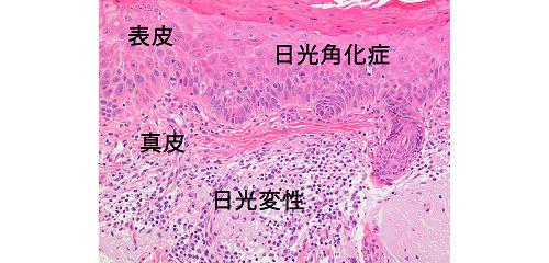 図5:日光角化症の顕微鏡写真