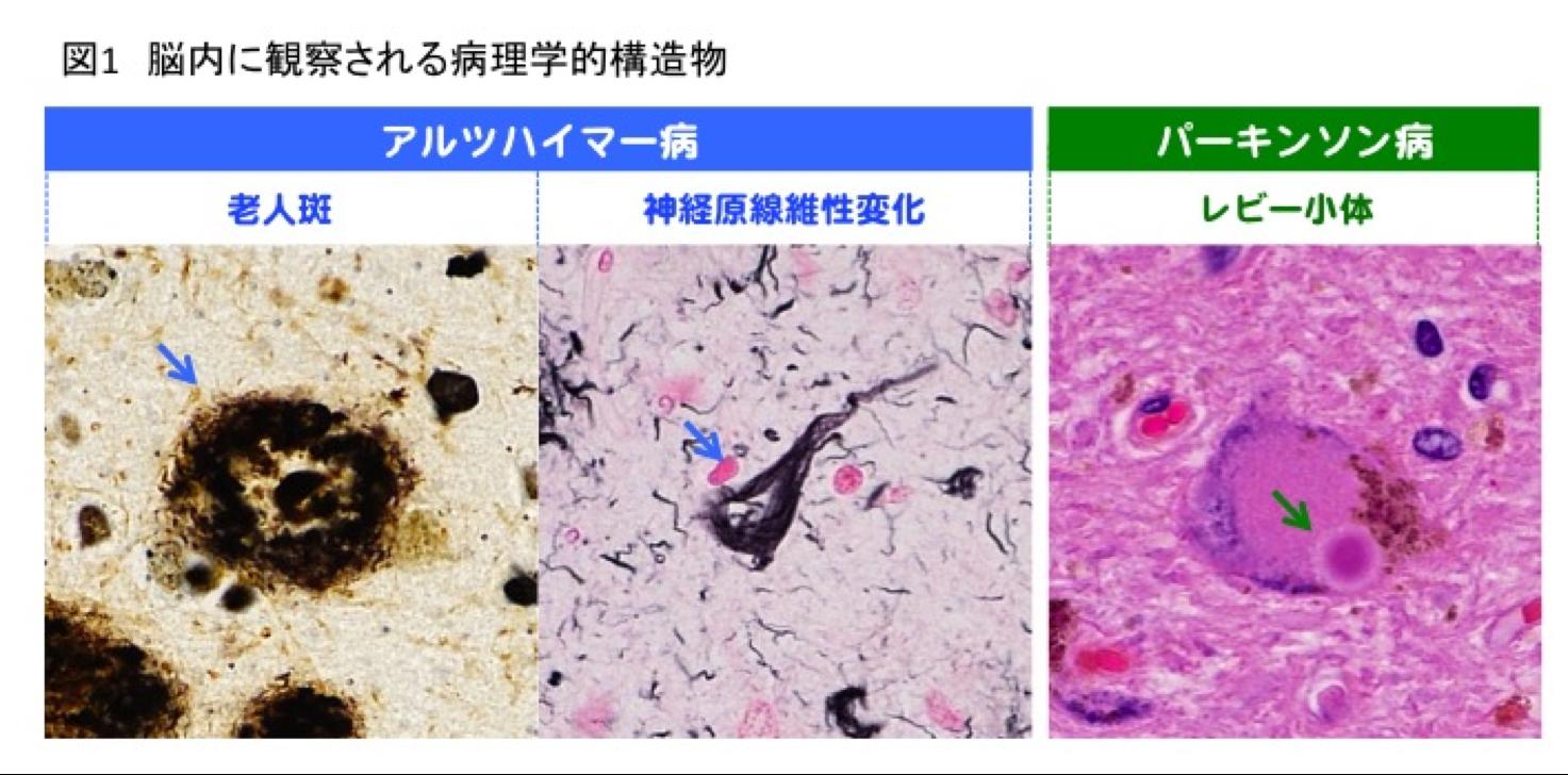 図1 脳内に観察される病理学的構造物