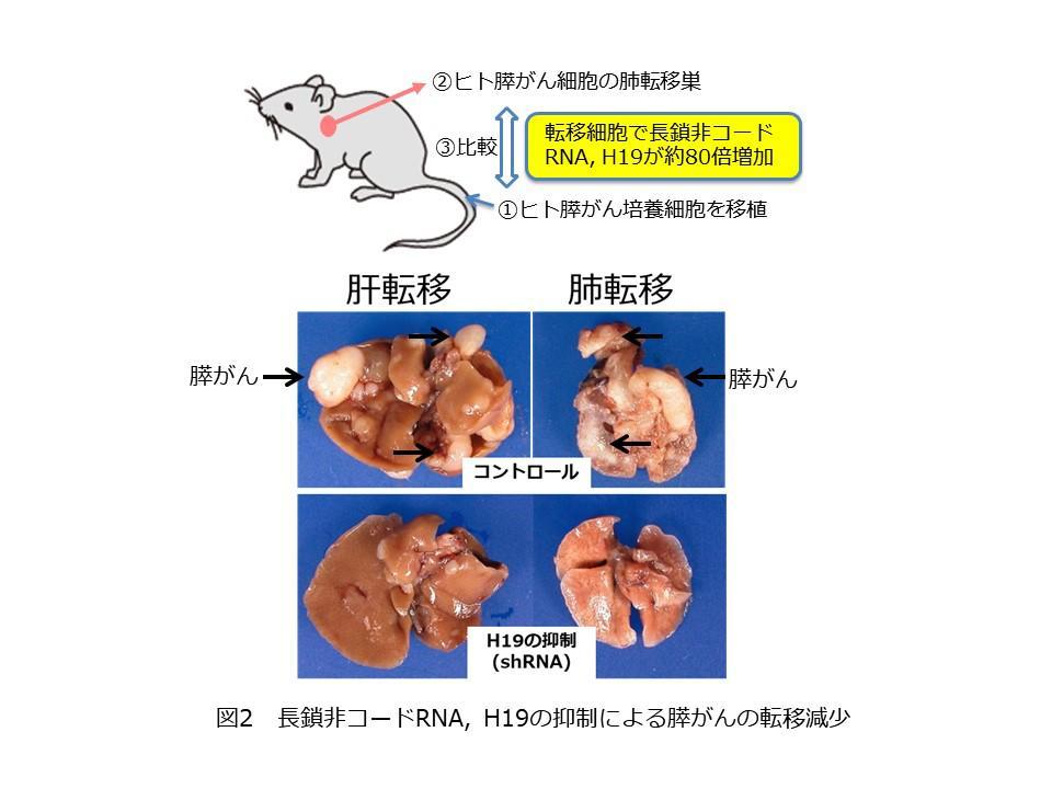 図2 長鎖非コードRNA, H19の抑制による膵がんの転移減少.JPG